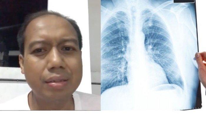 Sutopo Purwo Nugroho Meninggal, Kanker Sudah Menyebar ke Tulang dan Sejumlah Organ Vital Lain