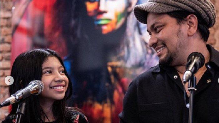 Tompi dan Ayesha Hibur Anak Penderita Kanker untuk Menumbuhkan Kepedulian Sejak Kecil