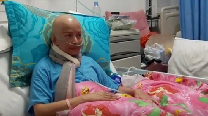 Tangan Kiri Yana Zein Bengkak Akibat Kanker
