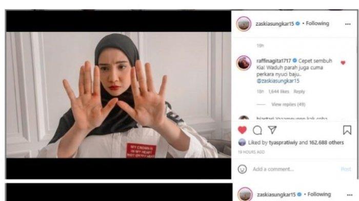 Pemain sinetron Zaskia Sungkar mengunggah kabar mengejutkan di akun media sosialnya. Di foto yang diunggah di media sosialnya, terlihat tangan Zaskia Sungkar memerah.