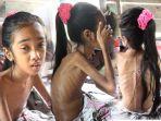 bocah-berusia-11-tahun-asal-menasah-trieng-lhokseukon-aceh-utara-bernama-putri-ora-gizi-buruk.jpg