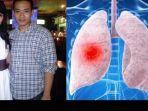 suami-intan-rj-meninggal-akibat-infeksi-paru-paru11.jpg