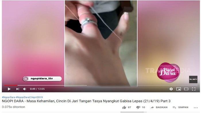 Cincin pernikahan Tasya saat tidak bisa dilepas dari jari manisnya. Sang suami mencoba melepaskan dengan menggunakan benang namun gagal.
