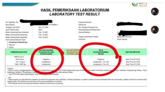 Hasil PCR Atta Halilintar yang sempat bersinggungan langsung dengan Aurel Hermansyah, Rabu (17/2/2021).