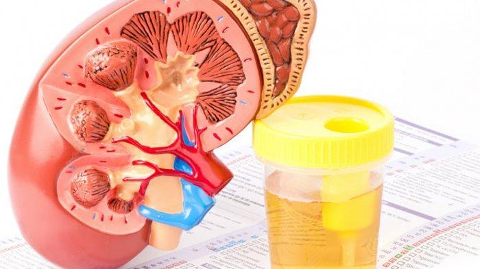 5 Cara Mudah agar Terhindar dari Sakit Ginjal, Cukup Minum Air Putih hingga Berhenti Merokok