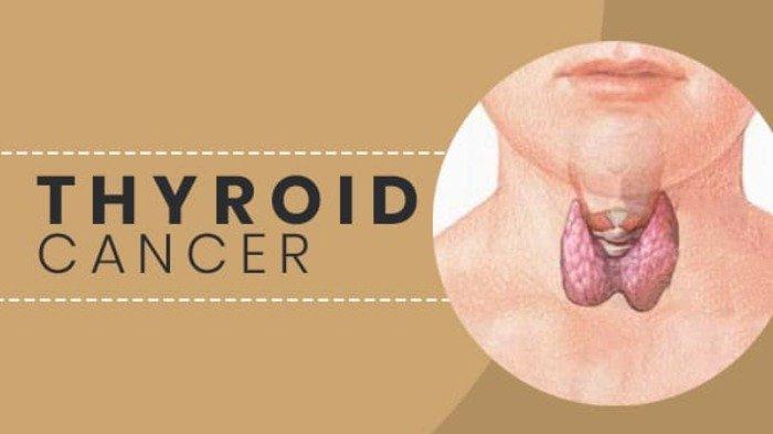 Ilustrasi kanker tiroid.