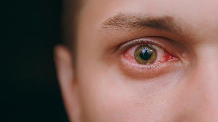 Ilustrasi mata merah - Mata merah pertanda gejala corona. Peneliti Amerika pun menyebutkan mata merah bisa menjadi sumber infeksi Covid-19.