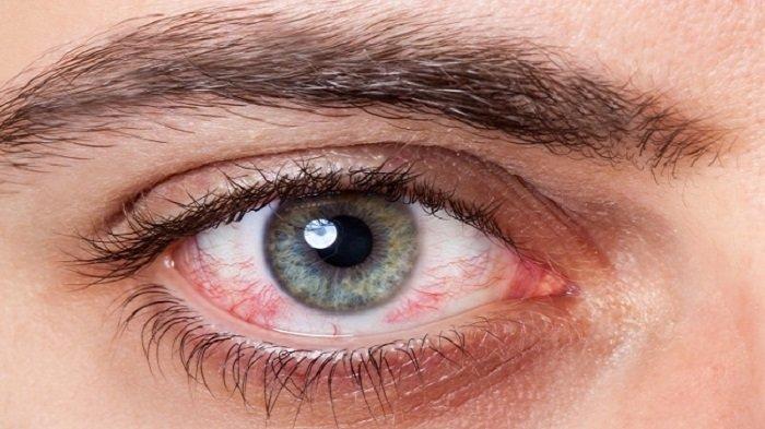 Ilustrasi mata merah