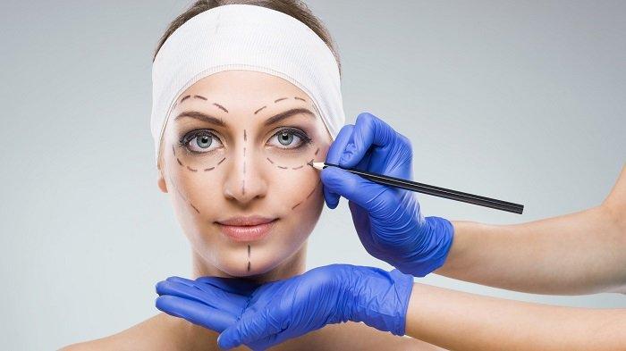 Ilustrasi operasi plastik