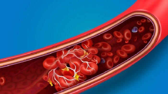 Bahaya Komplikasi Pembekuan Darah pada Pasien Covid-19, Kenali Tandanya saat Isolasi Mandiri