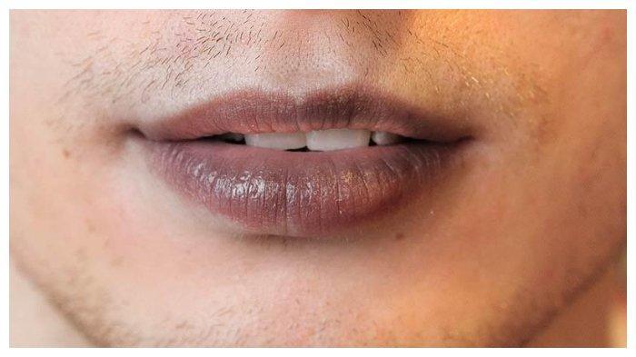 Jangan Jilati Bibir, Ini Deretan Cara untuk Mengatasi Bibir yang Menghitam karena Gaya Hidup