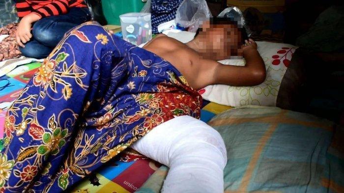 Bocah SD di Tanjungbalai Dibully Temannya, Dipaksa Minum Air Kencing hingga Dibakar saat Bermain