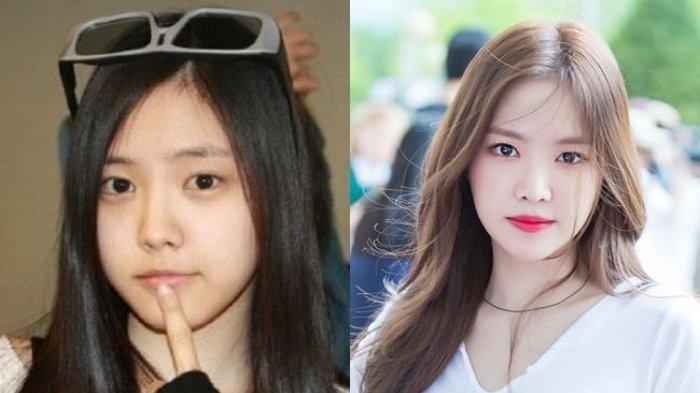 Resmi, Son Na Eun Apink Menandatangani Kontrak dengan YG Entertainment sebagai Aktris