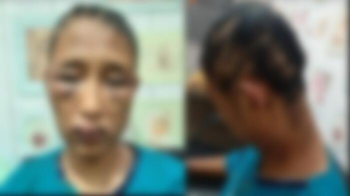 Reni, IRT di Banyuasin mengalami trauma psikis pasca dianiaya suami siri saat ini mendapatkan pendampingan Polres Banyuasin, Sabtu (5/6/2021).