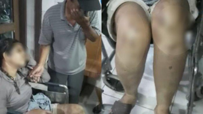Seorang wanita mengalami penyekapan hingga dirantai di lehernya di wilayah Jalan Tangguk Bongkar, Kelurahan Tegal Sari Mandala, Medan Denai, subuh, Jumat (23/4/2021). Sang ayah korban tak mampu menahan isak tangis melihat kondisi anaknya.