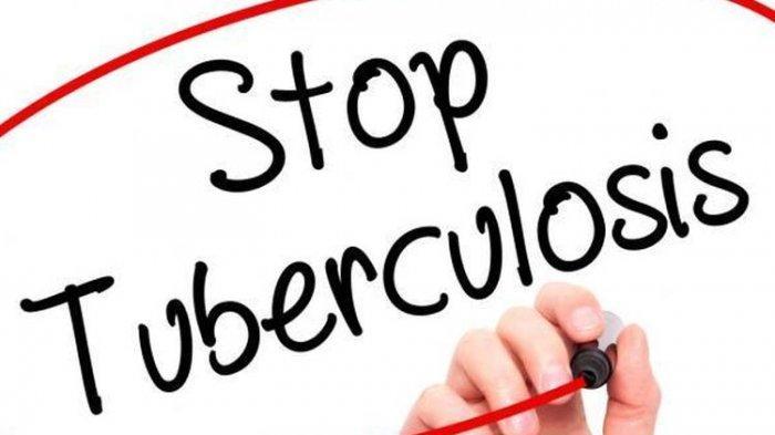 Indonesia Peringkat Ketiga Dunia dengan Jumlah TBC Terbanyak, Jokowi Targetkan Bebas TBC 2030