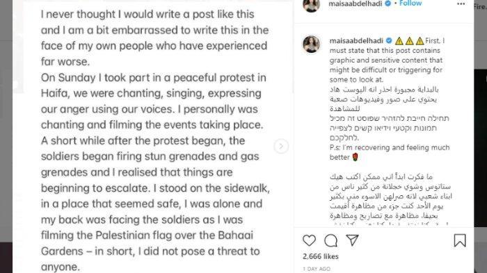 Unggahan aktris Palestina Maisa Abd Elhadi tentang kronologi dirinya ditembak polisi Israel dalam unjuk rasa, Kamis (13/5/2021).