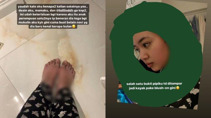 Viral Selebgram Unggah Foto Bekas Dianiaya Ayah, Tuding sang Oknum Pilih Bela Pelakor: Tega Banget