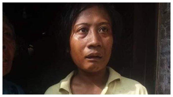 Viral Kisah Wanita Makan Jari Tangan karena Diduga Kelaparan.