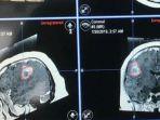 ilustrasi-kanker-otak.jpg