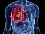 kanker-paru-paru_20181010_082339.jpg