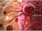 sel-kanker-yang-sudah-menyebar_20170220_172038.jpg